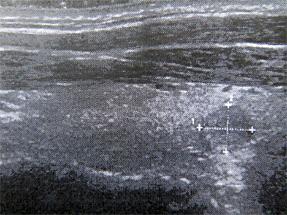エコー(嚢胞)画像