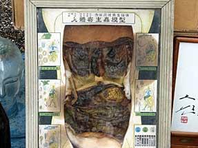 東寺がらくた市・人体寄生虫模型